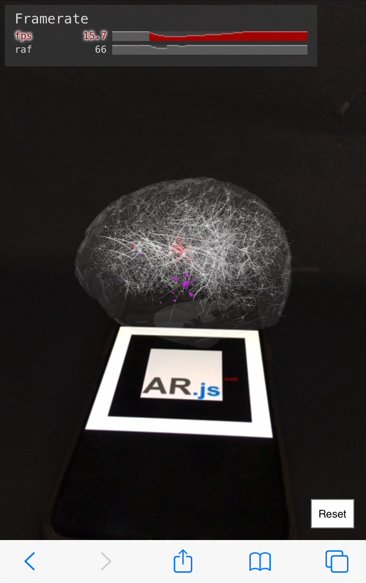 Neurons in a brain